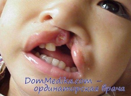 Односторонняя расщелина губы у ребенка