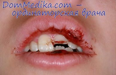 травма зуба и аппарат