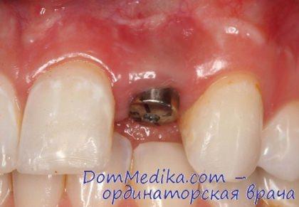 Отбеливание семейная стоматология
