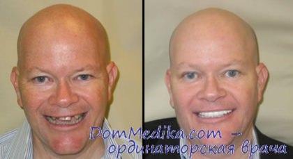 Кому нельзя имплантировать зубы? Противопоказания к имплантации