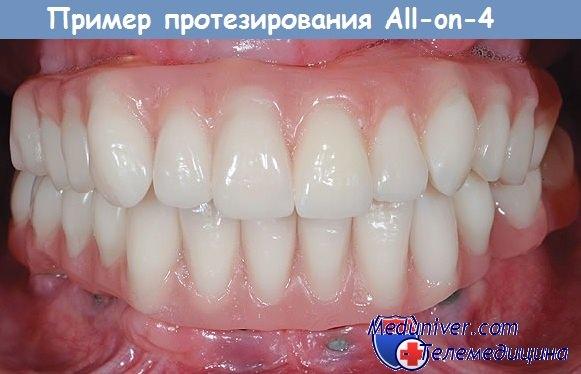 Пример All-on-4 имплантации зубов