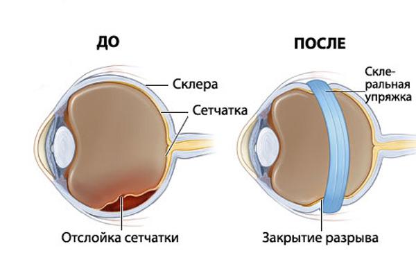 Лечение заболеваний и отслоения сетчатки