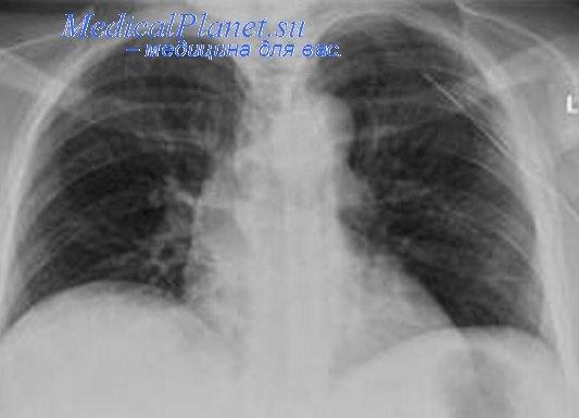Подкожная эмфизема на рентгеновском снимке