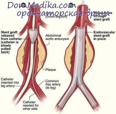 Расслаивающая аневризма. Аневризма брюшной аорты