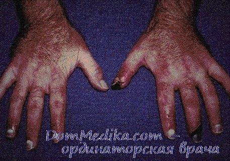 Облитерирующий тромбангиит - болезнь Бюргера