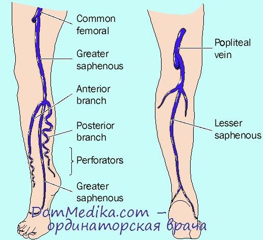 Тромбофлебит левой ноги