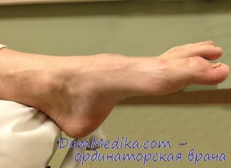 Контрактура сустава физиотерапия лечебная гимнастика при артрозе локтевого сустава