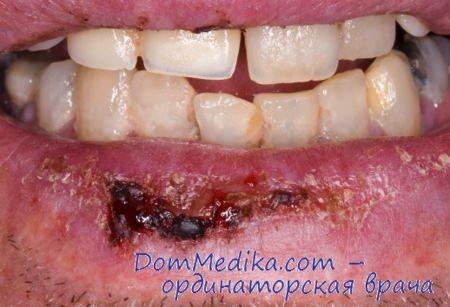 Рак губы диагностика клиника лечение