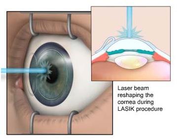 Лазерная хирургия глаз LASIK